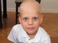 Antek recibió quimioterapia.